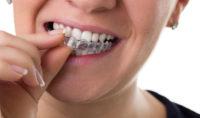 Trois techniques efficaces pour le blanchiment des dents