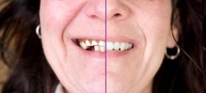 Dents absentes: de véritables conséquences sur la perte osseuse