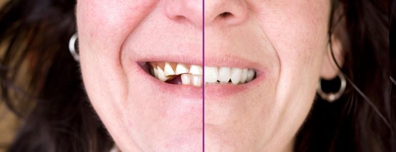 Arrêter la perte osseuse avec des implants dentaires.