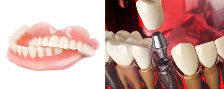 Comparaison dentier traditionnel et prothèse dentaire sur implants