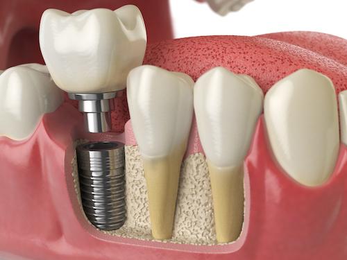 Prothèse dentaire sur implants.