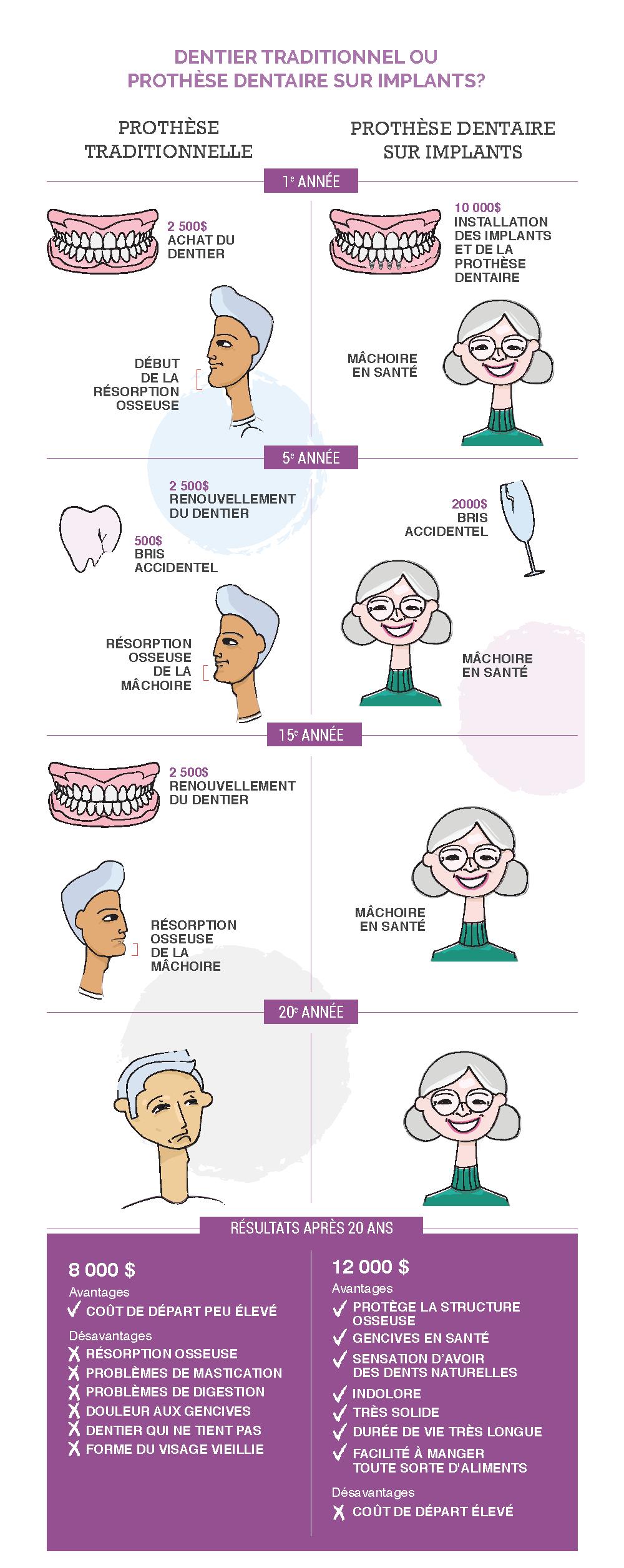 Infographie dentier traditionnel ou prothèse dentaire sur implants