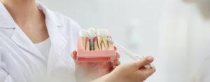 Dentier traditionnel ou prothèse dentaire sur implants?