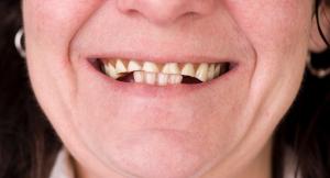 Adieu à l'usure excessive des dents grâce aux prothèses dentaires