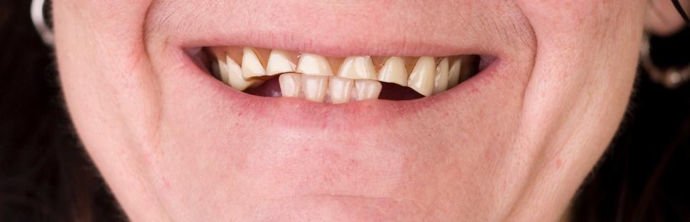 soins de denturologie pour problèmes d'usure excessive des dents