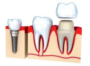 Couronne dentaire, couronne sur implants ou prothèse dentaire sur implants?