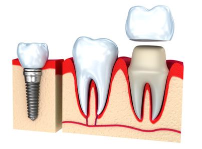 couronne dentaire et prothèse dentaire sur implants