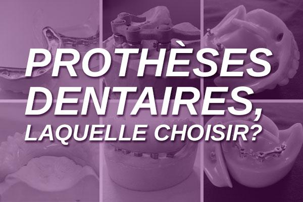 Prothèses dentaires fixes ou amovibles : quelle est la solution optimale pour vous?