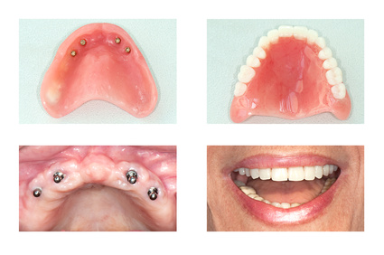 Étapes fabrication de prothèses dentaires