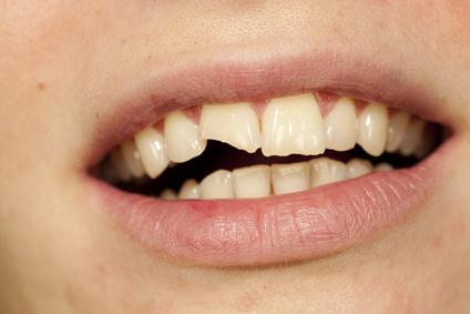 Une prothese dentaire sur implants brisee : que faire?