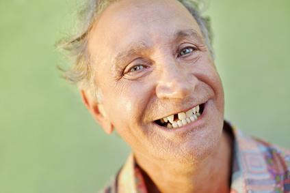 Solutions pour la perte de dents