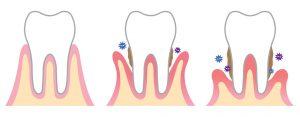 Solutions à la parodontite