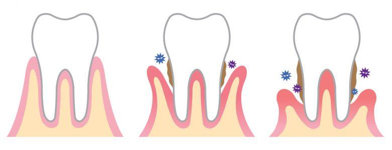 La parodontite abîme gencives et os de la mâchoire. Il y a des solutions!