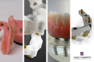 Types d'attache pour prothèses dentaires sur implants
