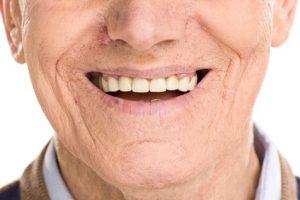Changer l'apparence d'une dent : facette dentaire et autres options