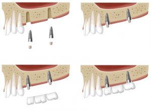Les 6 étapes de la pose des implants dentaires