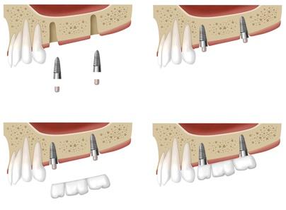 rencontres avec de fausses dentsbar branchement étiquette