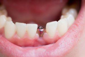 Les 12 réponses à vos questions sur les implants dentaires