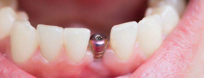 tout connaître sur la pose des implants dentaires