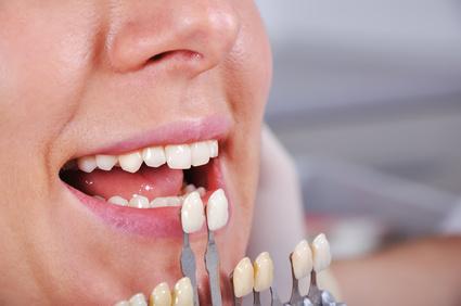 fabrication-de-prothese-dentaires-a-votre-image-Isabelle-Gaudette