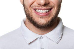 Perte de dents : quoi faire?