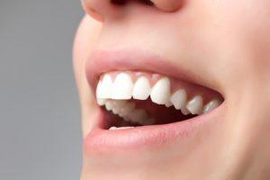 Un dentier invisible; comment avoir un dentier qui ne se voit pas?