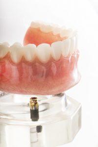 Implants dentaires ou dentiers – Comment faire le bon choix?