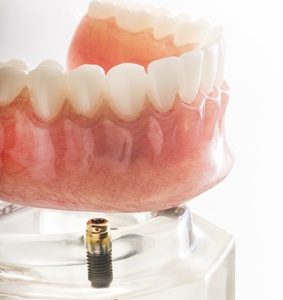 Implants dentaires ou dentiers