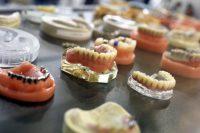 types-de-protheses-dentaires