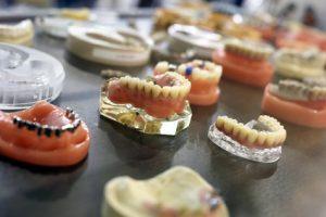 Autres types de prothèses dentaires : solutions de rechange au dentier?