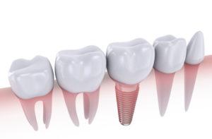 Implants dentaires et dents naturelles : mariage possible?