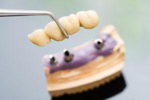 5 réponses aux interrogations sur le pont dentaire sur dents naturelles