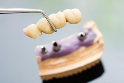 pont-dentaire