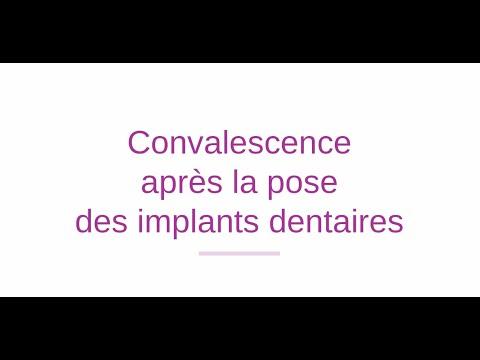 Les 5 stades de réhabilitation après une opération d'implants dentaires