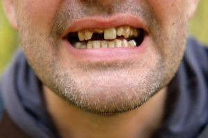 Que faire avec des dents pourries?
