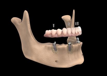 Perte osseuse dentaire