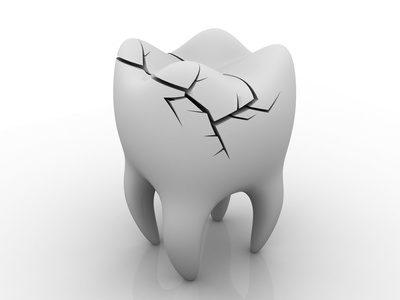 dent fissurée