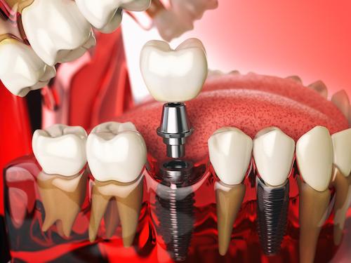 Implant dentaire en titane