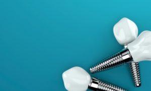 Une prothèse dentaire partielle ou l'implant unitaire pour remplacer ma dent?
