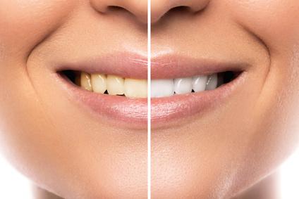 Résultat d'un blanchiment des dents sans risques