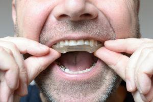 Grincement des dents : les soins dentaires contre le bruxisme