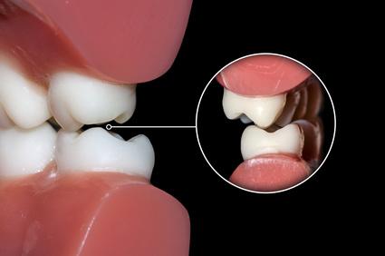 problème d'occlusion dentaire