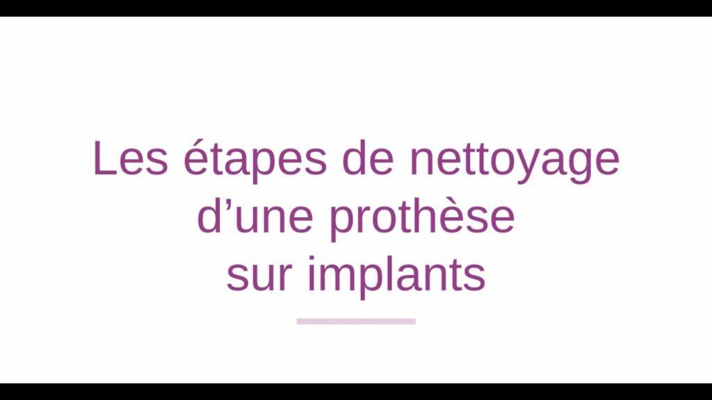 Les étapes de nettoyage d'une prothèse dentaire